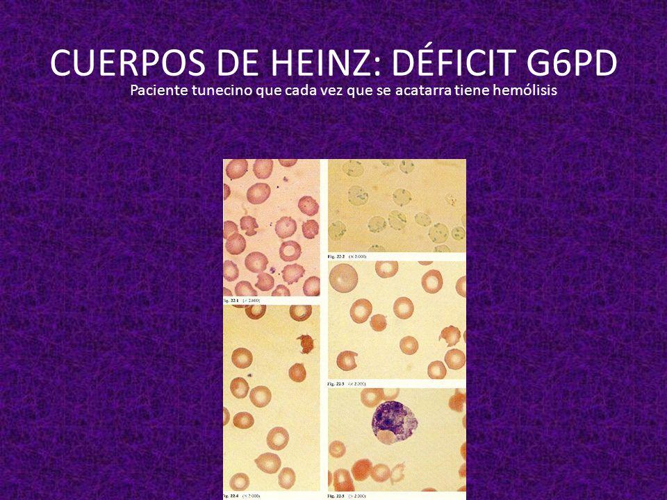 CUERPOS DE HEINZ: DÉFICIT G6PD