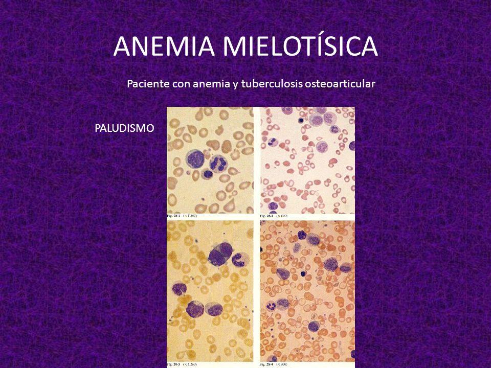 ANEMIA MIELOTÍSICA Paciente con anemia y tuberculosis osteoarticular