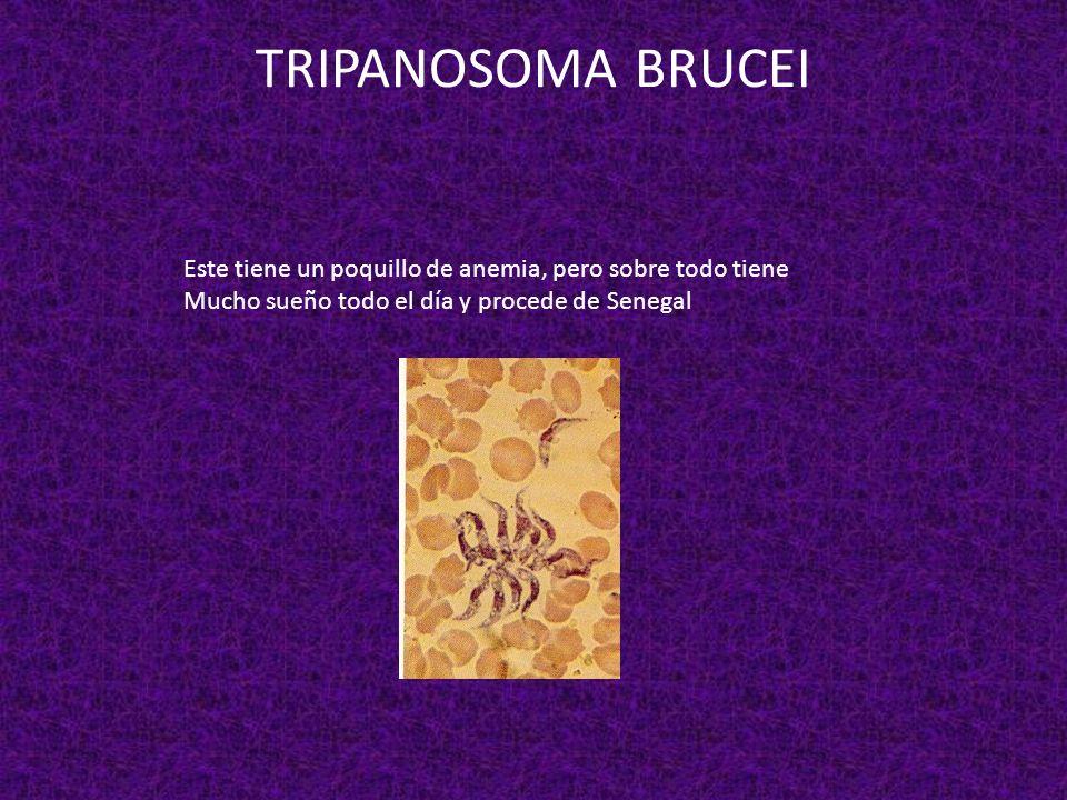 TRIPANOSOMA BRUCEIEste tiene un poquillo de anemia, pero sobre todo tiene.