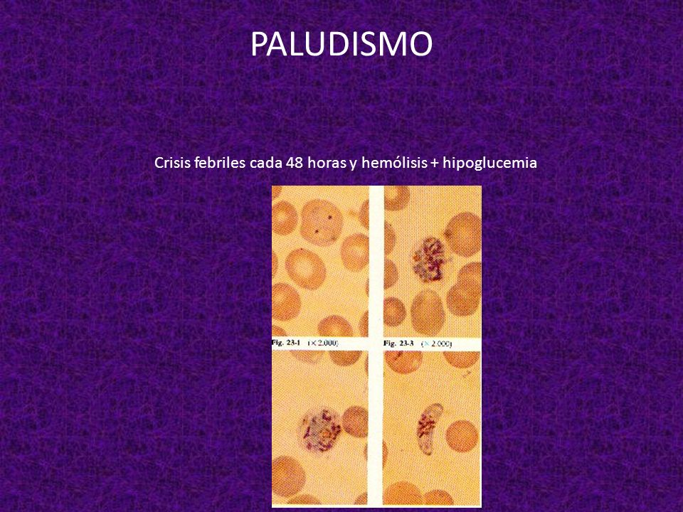PALUDISMO Crisis febriles cada 48 horas y hemólisis + hipoglucemia