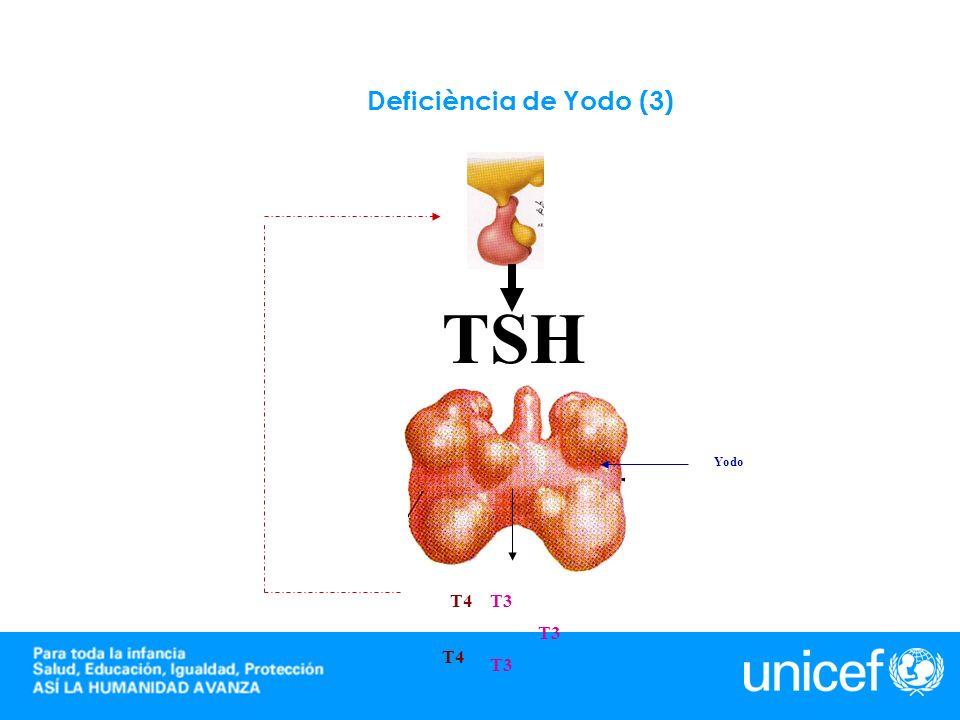 Deficiència de Yodo (3) TSH Yodo T4 T3 T3 T4 T3