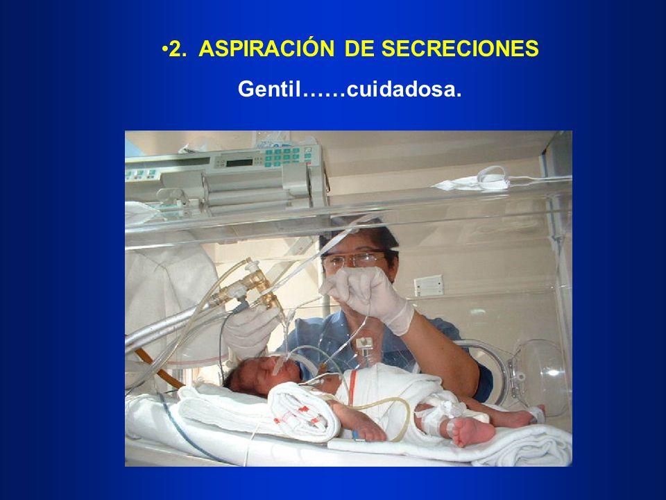 2. ASPIRACIÓN DE SECRECIONES