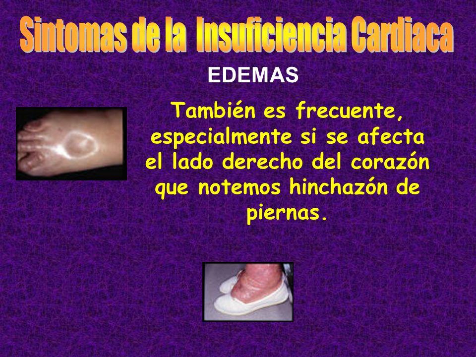 Sintomas de la Insuficiencia Cardiaca