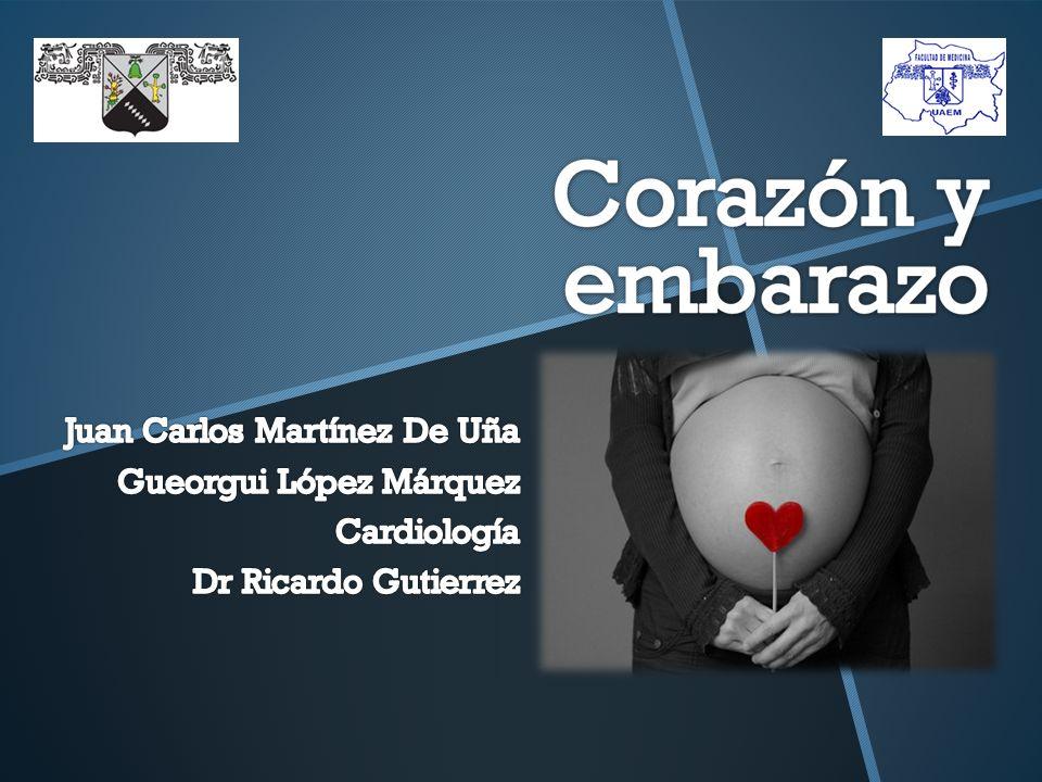 Juan Carlos Martínez De Uña