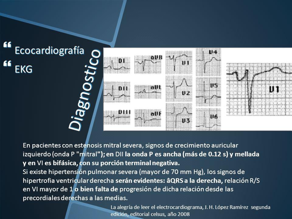 Diagnostico Ecocardiografía EKG