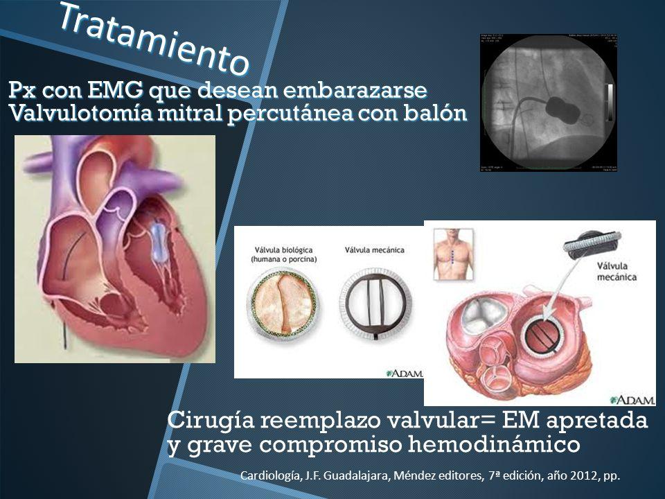 Tratamiento Px con EMG que desean embarazarse Valvulotomía mitral percutánea con balón.