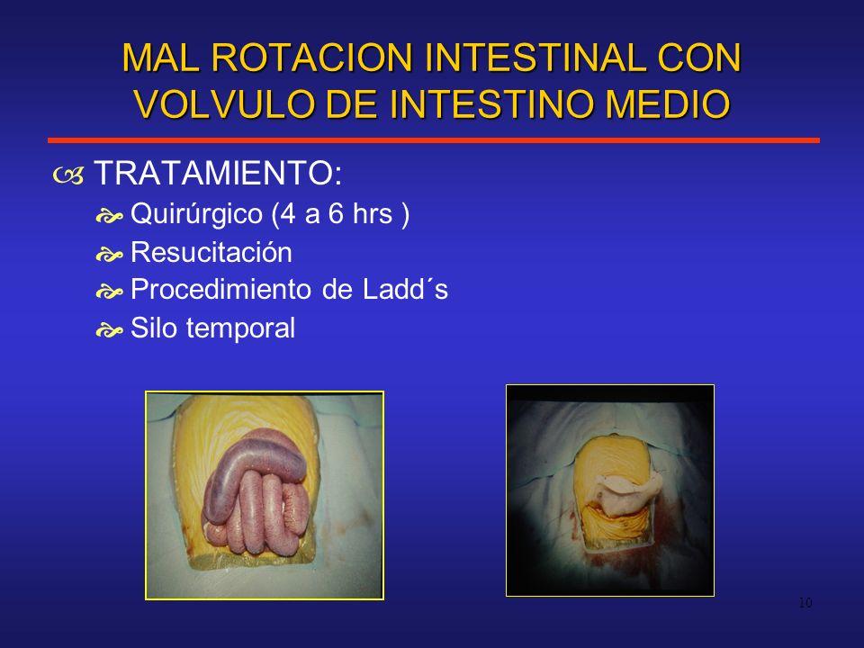 MAL ROTACION INTESTINAL CON VOLVULO DE INTESTINO MEDIO