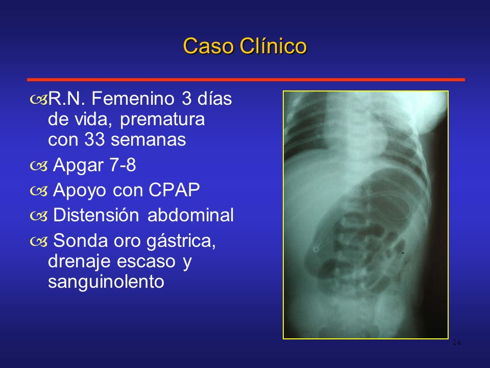 Caso Clínico R.N. Femenino 3 días de vida, prematura con 33 semanas