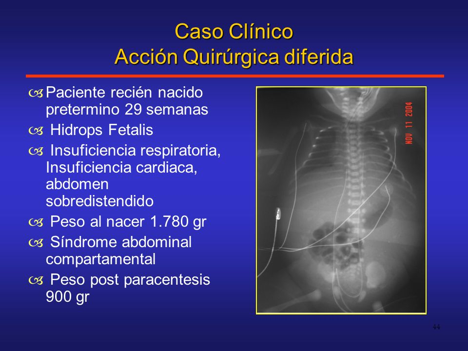 Caso Clínico Acción Quirúrgica diferida