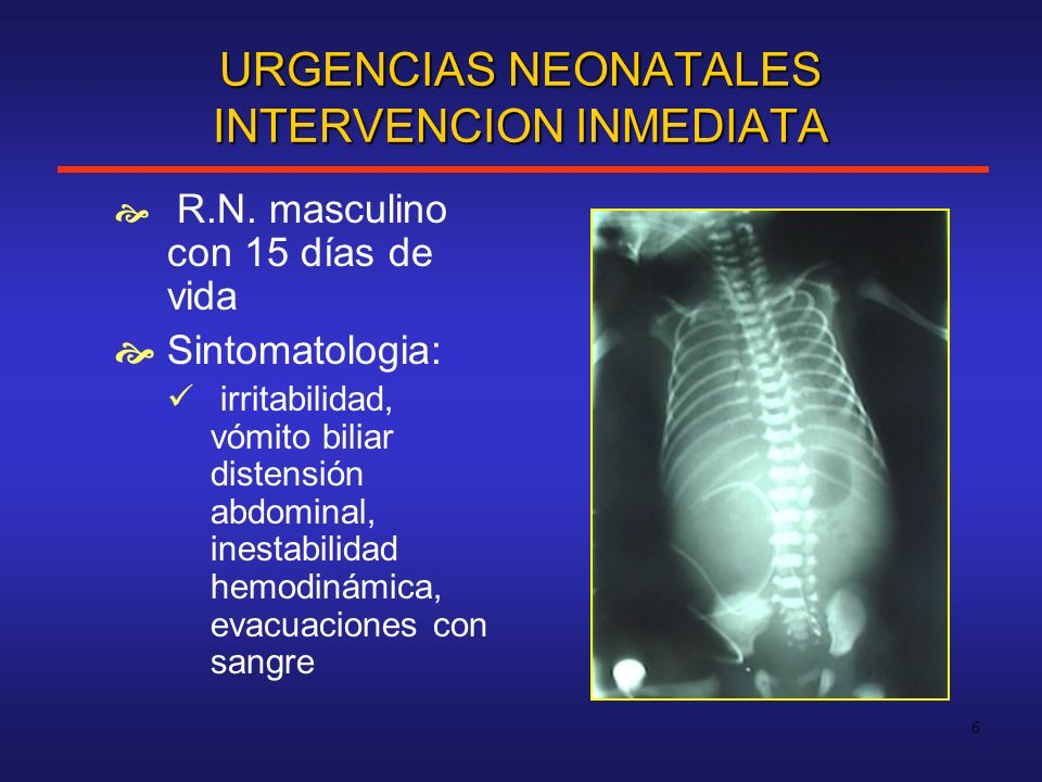 URGENCIAS NEONATALES INTERVENCION INMEDIATA