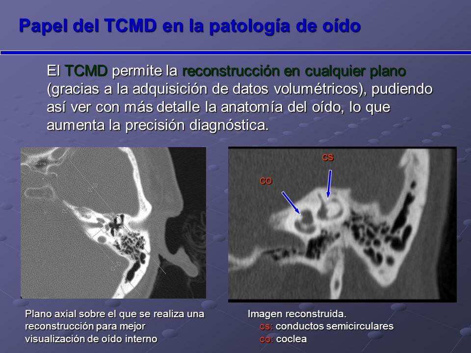 Papel del TCMD en la patología de oído