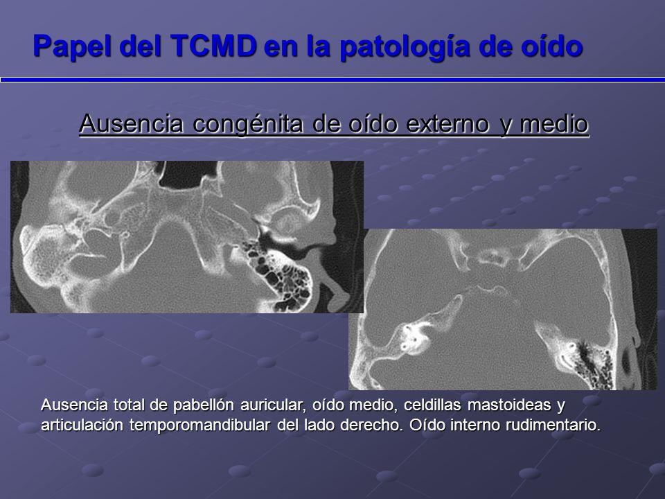 Ausencia congénita de oído externo y medio