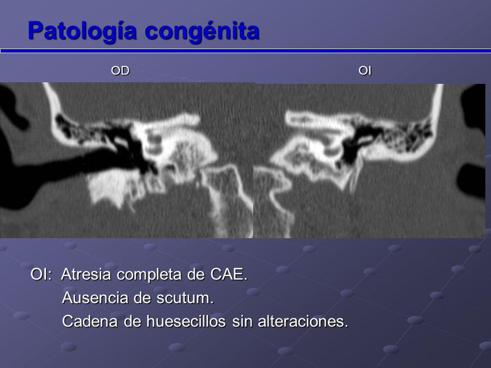 Patología congénita OI: Atresia completa de CAE. Ausencia de scutum.
