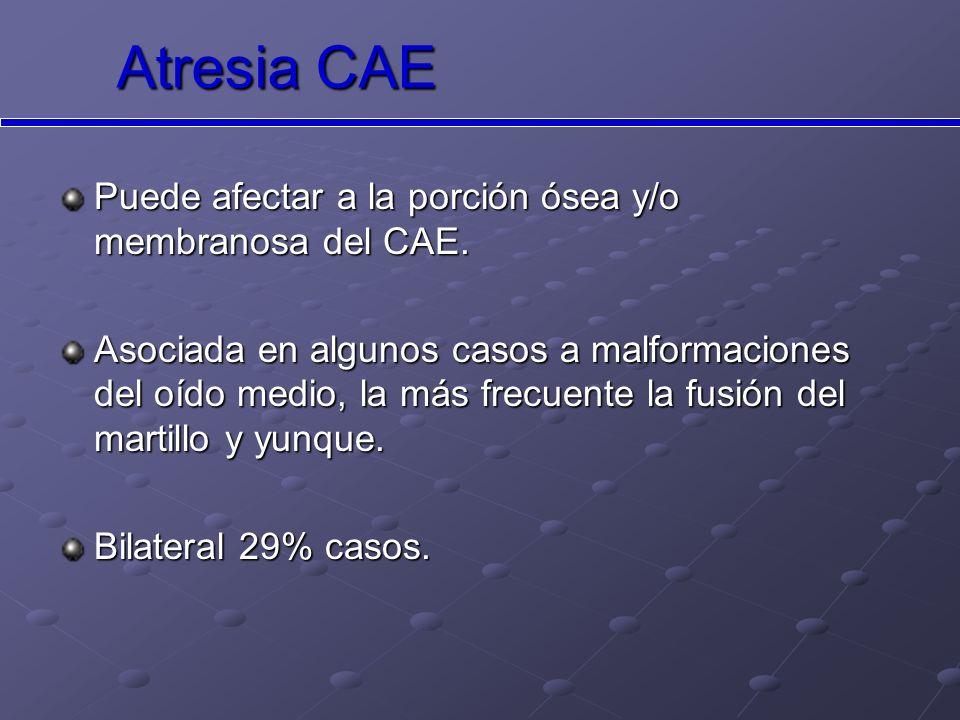 Atresia CAE Puede afectar a la porción ósea y/o membranosa del CAE.