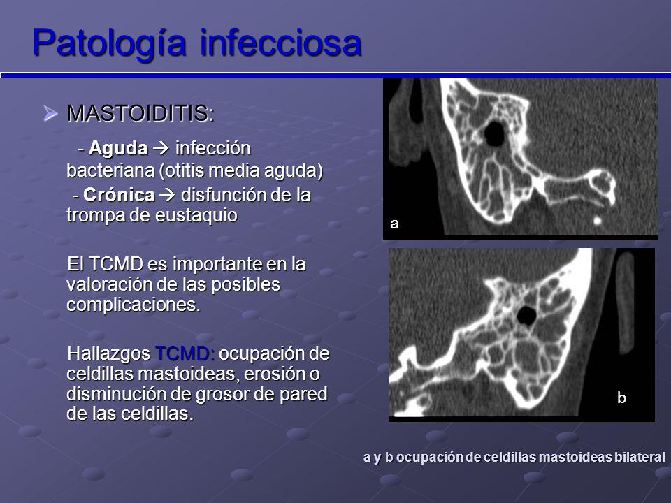 Patología infecciosa MASTOIDITIS: - Aguda  infección bacteriana (otitis media aguda) - Crónica  disfunción de la trompa de eustaquio.