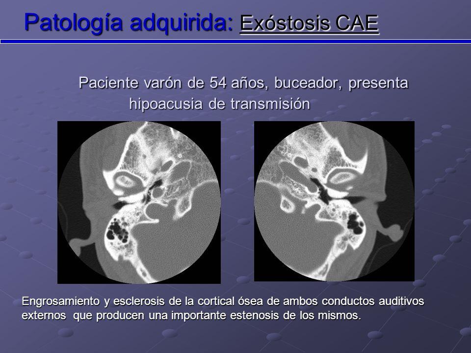 Patología adquirida: Exóstosis CAE