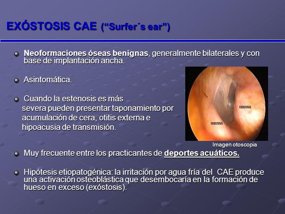 EXÓSTOSIS CAE ( Surfer´s ear )