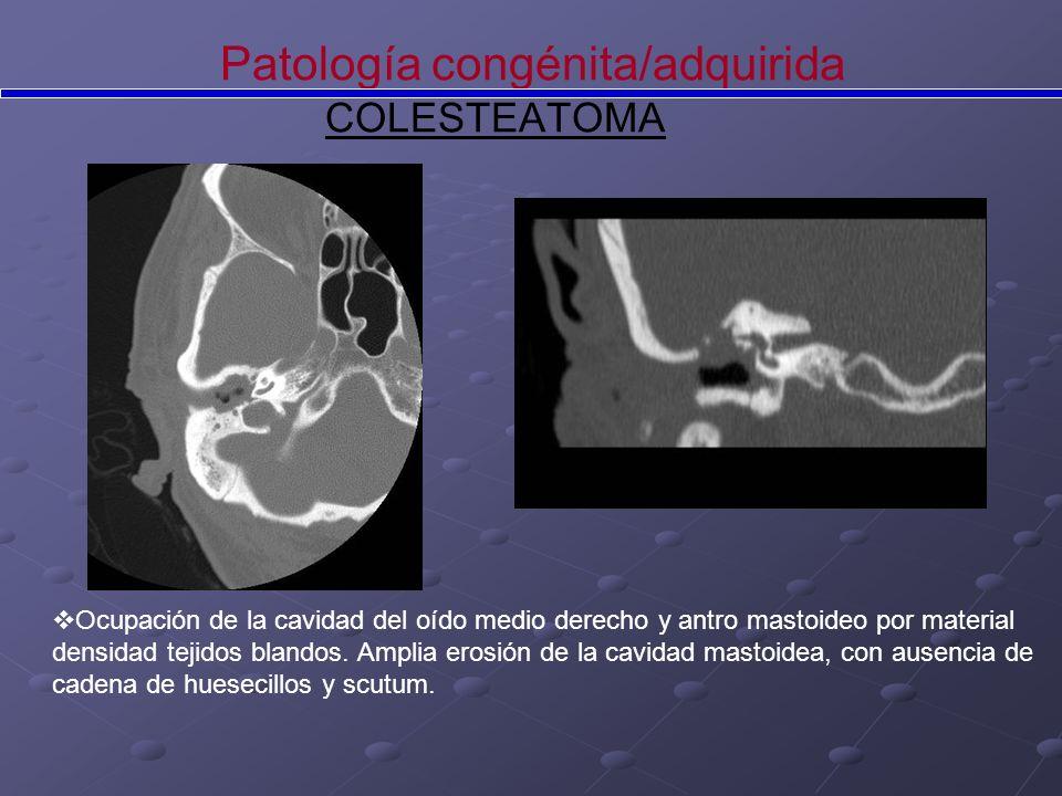 Patología congénita/adquirida COLESTEATOMA