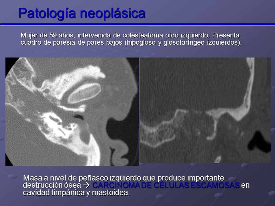 Patología neoplásica