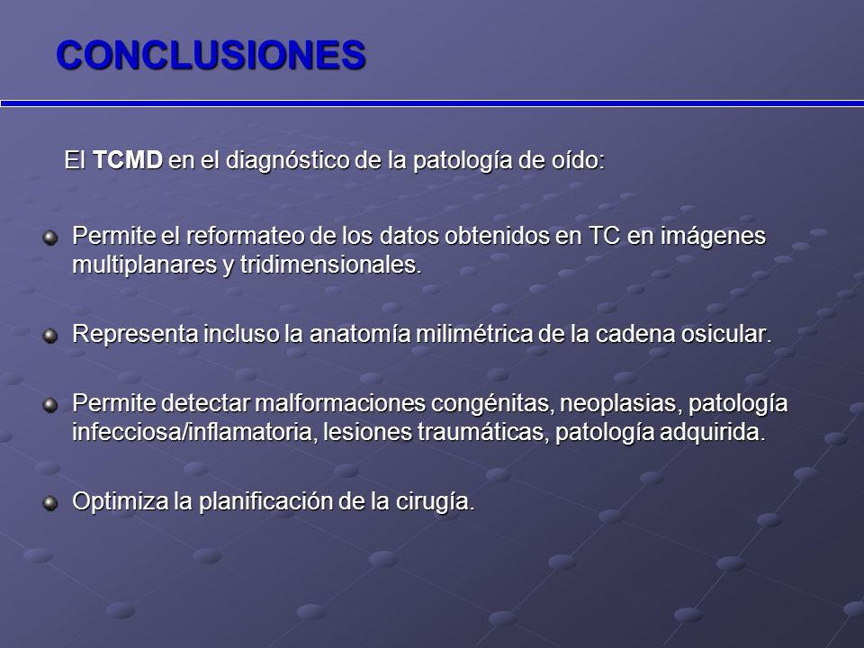 CONCLUSIONES El TCMD en el diagnóstico de la patología de oído: