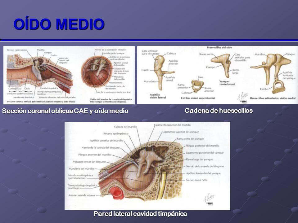 OÍDO MEDIO Sección coronal oblicua CAE y oído medio