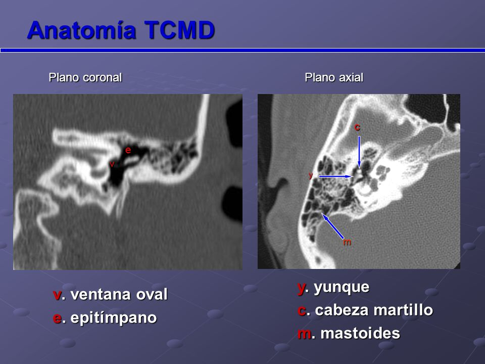 Anatomía TCMD y. yunque v. ventana oval c. cabeza martillo