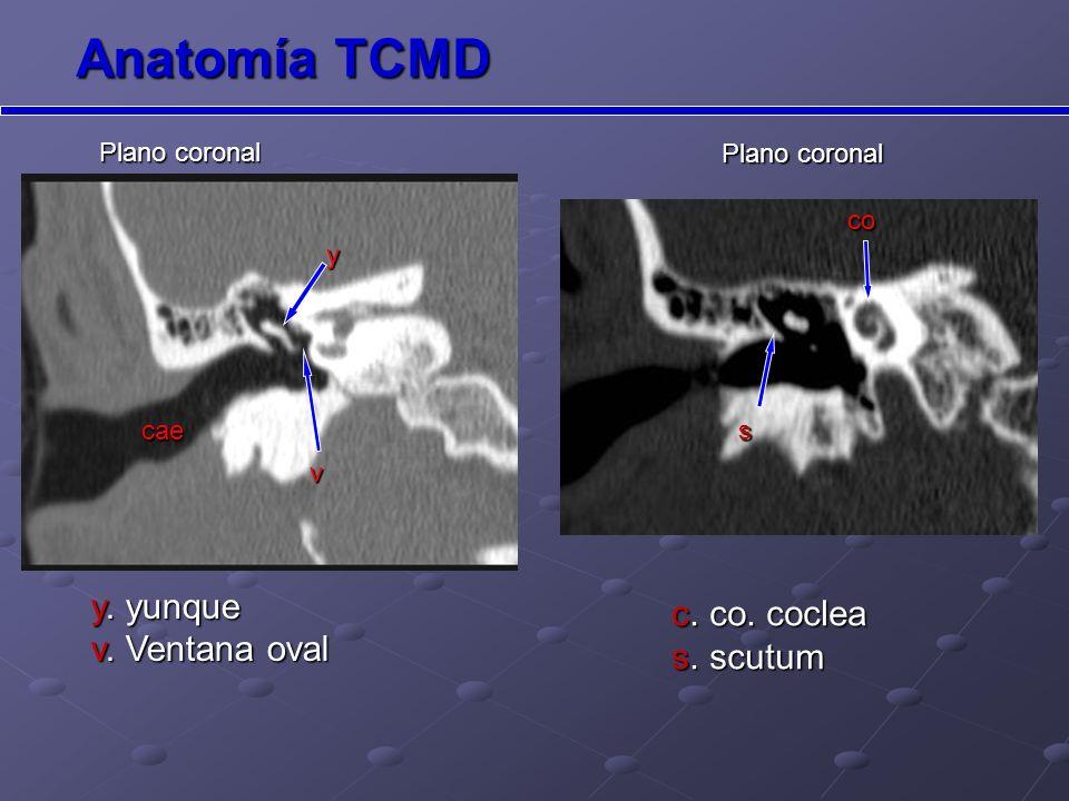 Anatomía TCMD y. yunque v. Ventana oval c. co. coclea s. scutum
