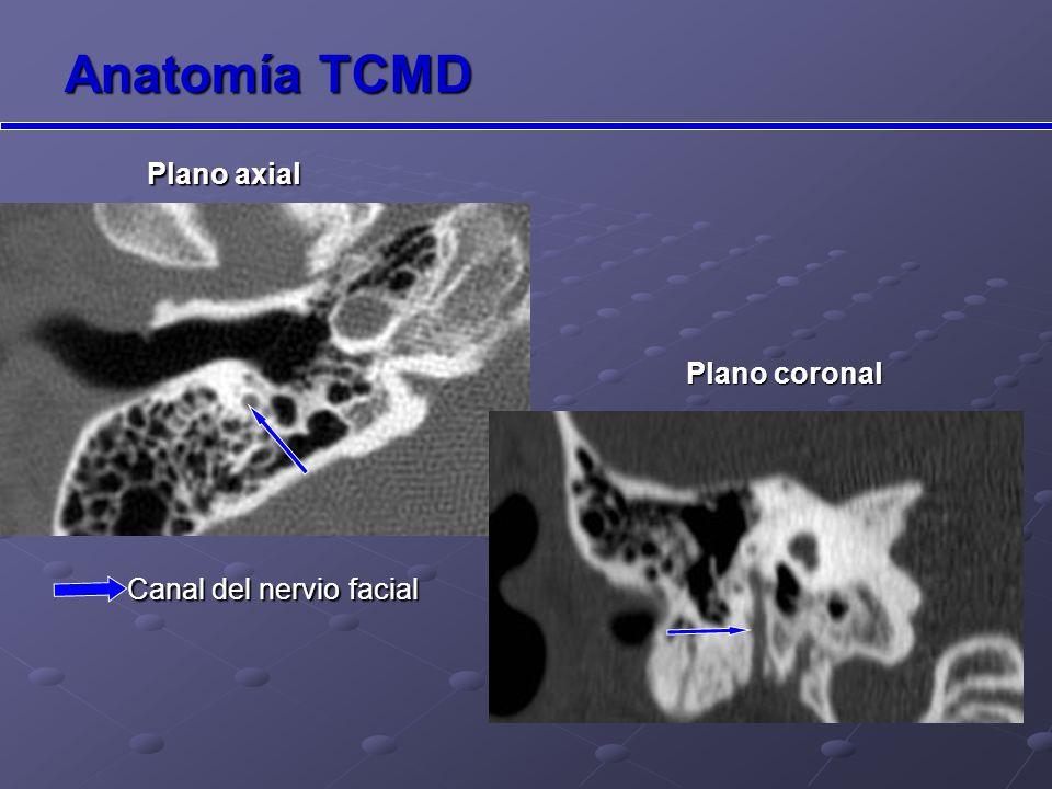 Anatomía TCMD Plano axial Plano coronal Canal del nervio facial