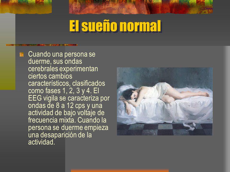 El sueño normal