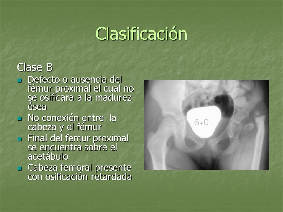 ClasificaciónClase B. Defecto o ausencia del fémur proximal el cual no se osificara a la madurez ósea.