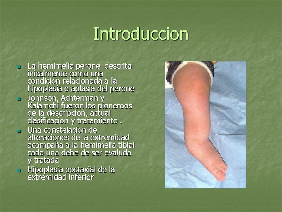 IntroduccionLa hemimelia perone descrita inicalmente como una condicion relacionada a la hipoplasia o aplasia del perone.