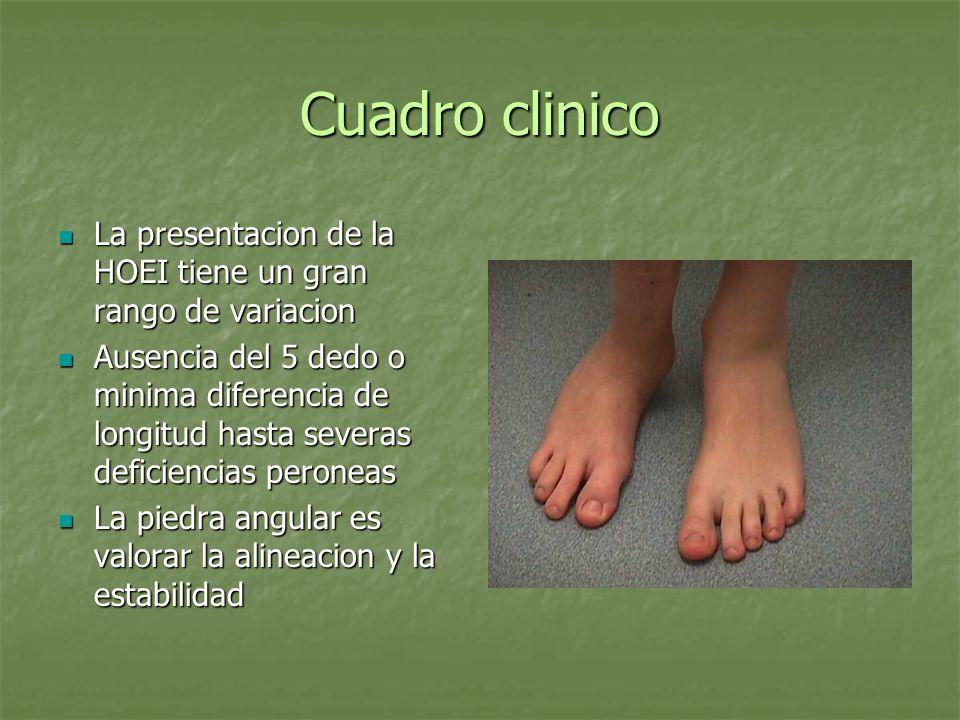 Cuadro clinicoLa presentacion de la HOEI tiene un gran rango de variacion.