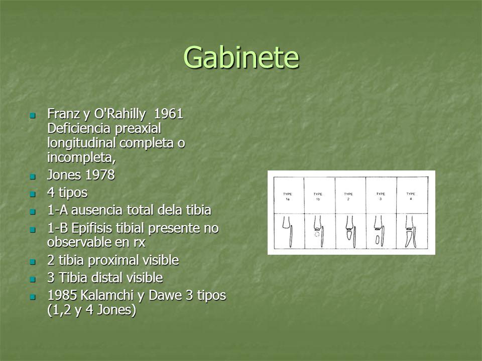 GabineteFranz y O Rahilly 1961 Deficiencia preaxial longitudinal completa o incompleta, Jones 1978.
