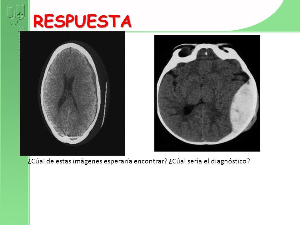 RESPUESTA ¿Cúal de estas imágenes esperaría encontrar ¿Cúal sería el diagnóstico