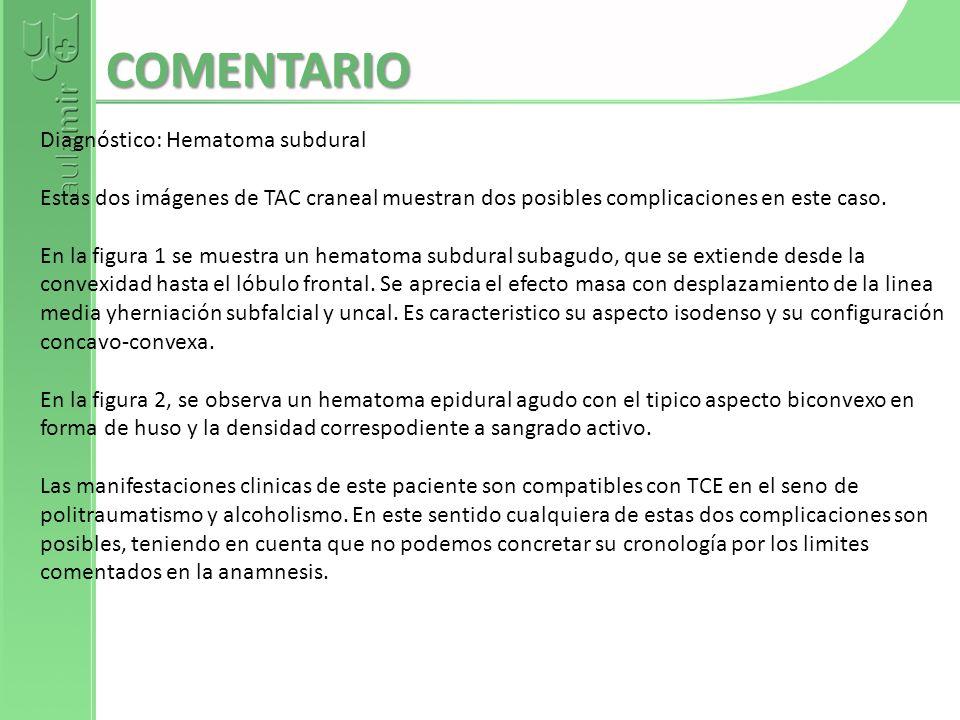 COMENTARIO Diagnóstico: Hematoma subdural
