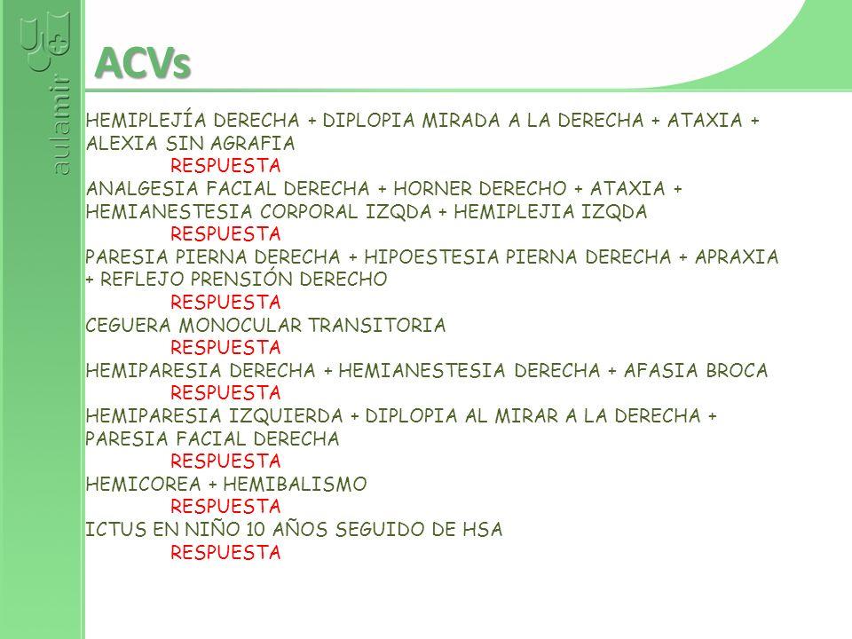 ACVs HEMIPLEJÍA DERECHA + DIPLOPIA MIRADA A LA DERECHA + ATAXIA +