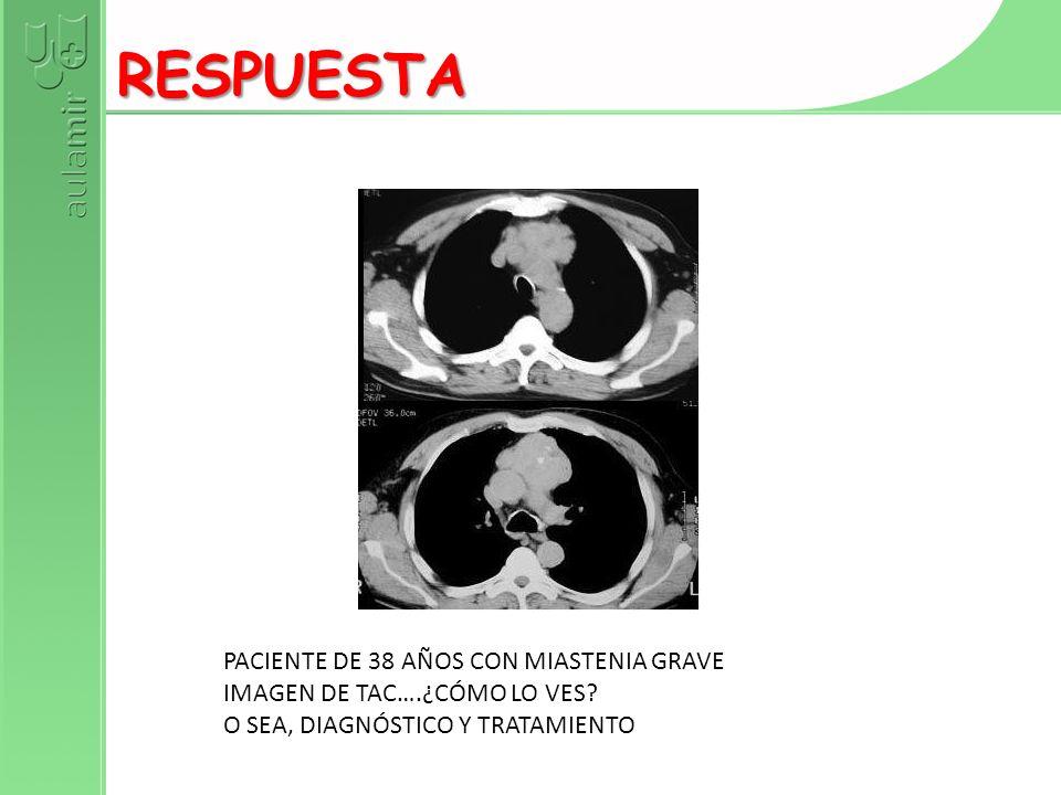 RESPUESTA PACIENTE DE 38 AÑOS CON MIASTENIA GRAVE