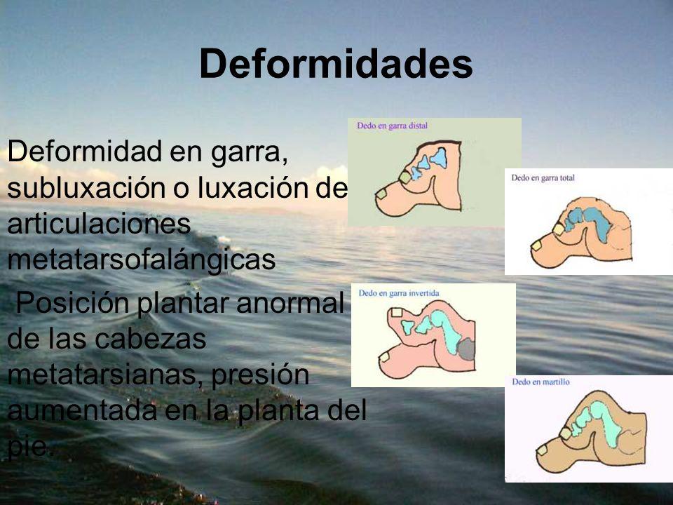DeformidadesDeformidad en garra, subluxación o luxación de articulaciones metatarsofalángicas.