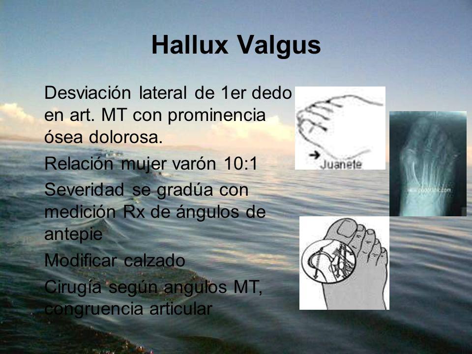 Hallux ValgusDesviación lateral de 1er dedo en art. MT con prominencia ósea dolorosa. Relación mujer varón 10:1.