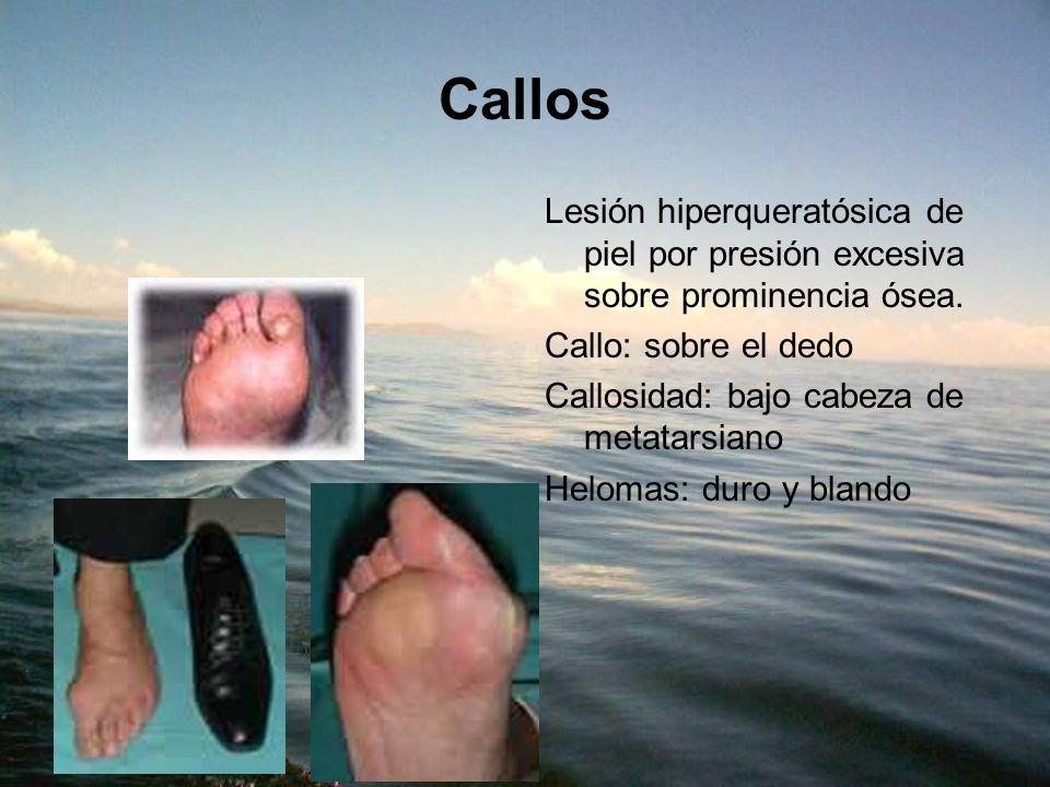 Callos Lesión hiperqueratósica de piel por presión excesiva sobre prominencia ósea. Callo: sobre el dedo.