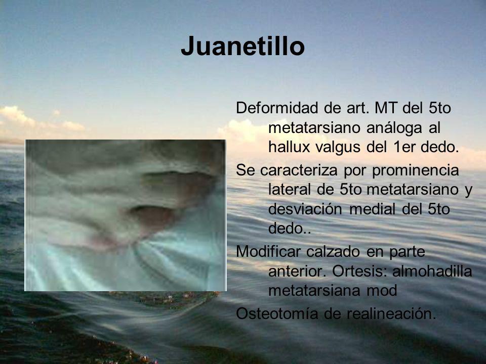 Juanetillo Deformidad de art. MT del 5to metatarsiano análoga al hallux valgus del 1er dedo.