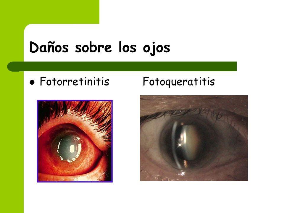 Daños sobre los ojos Fotorretinitis Fotoqueratitis