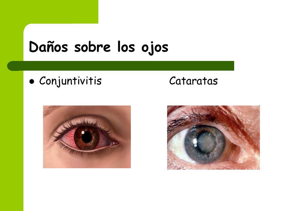 Daños sobre los ojos Conjuntivitis Cataratas
