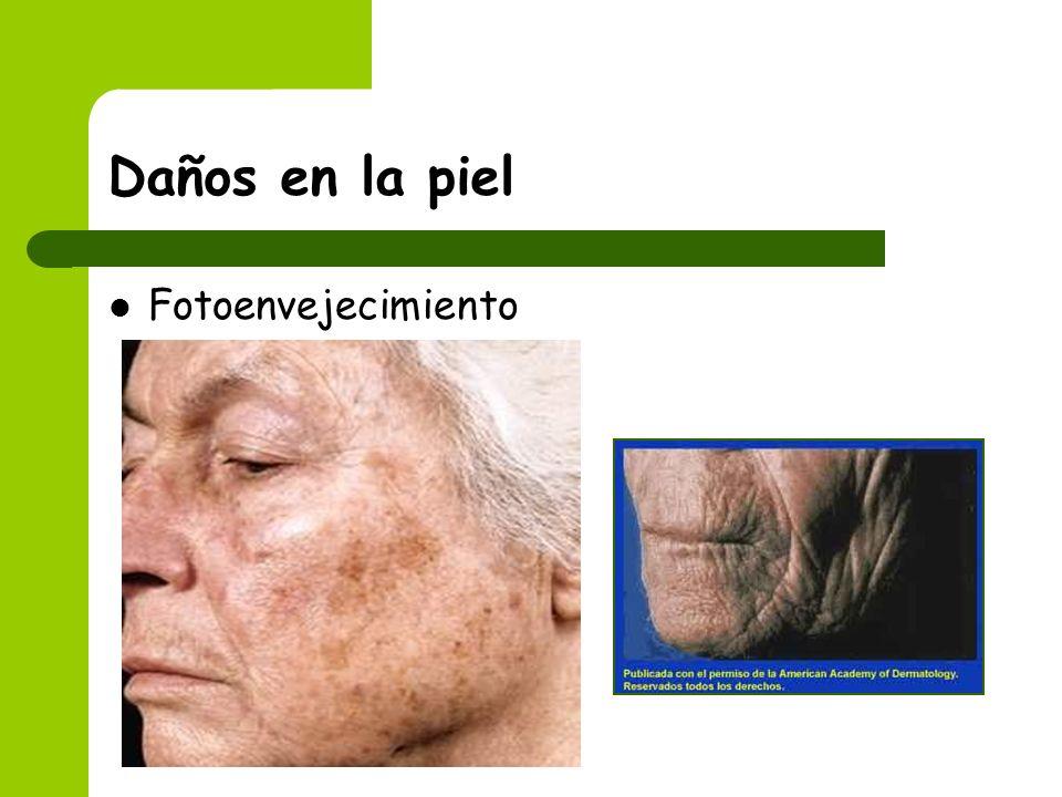 Daños en la piel Fotoenvejecimiento