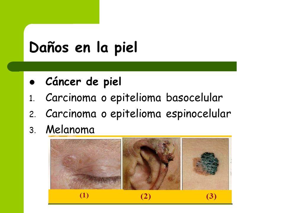 Daños en la piel Cáncer de piel Carcinoma o epitelioma basocelular