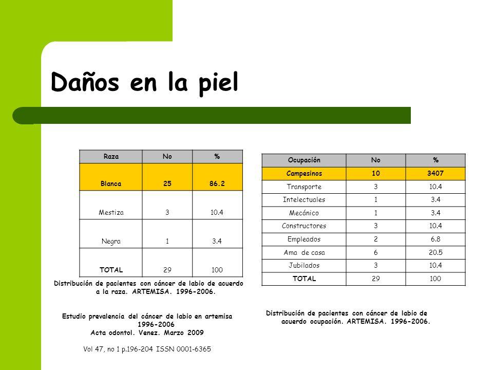 Daños en la pielDistribución de pacientes con cáncer de labio de acuerdo a la raza. ARTEMISA. 1996-2006.