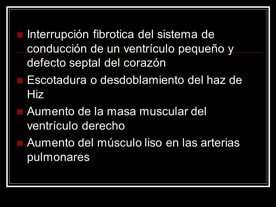 Interrupción fibrotica del sistema de conducción de un ventrículo pequeño y defecto septal del corazón