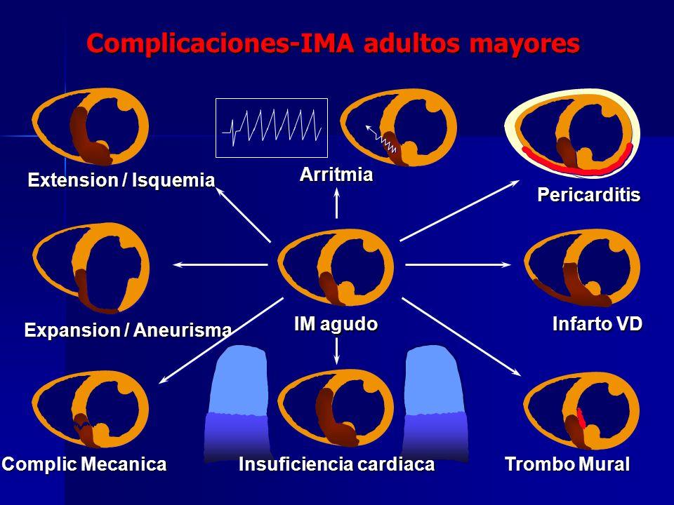Complicaciones-IMA adultos mayores