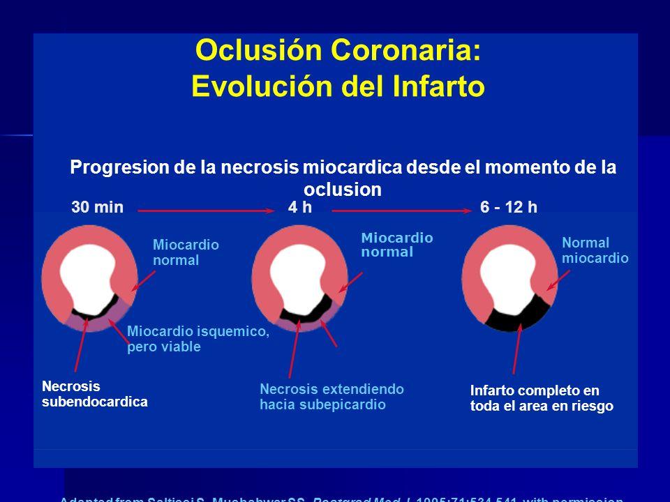 Oclusión Coronaria: Evolución del Infarto