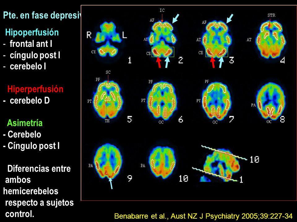 Pte. en fase depresiva Hipoperfusión frontal ant I cíngulo post I